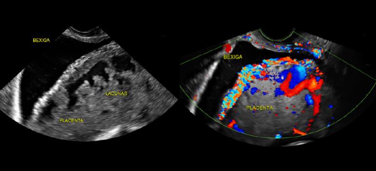 Sinais ultrassonográficos de acretismo placentário